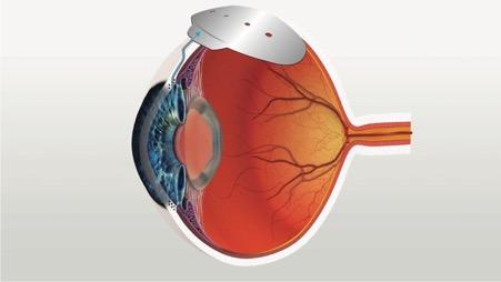 tube surgery for glaucoma